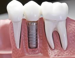 single implant and crown