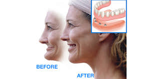 dental implants chandler before and after
