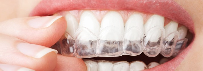 Invisalign in Chandler AZ