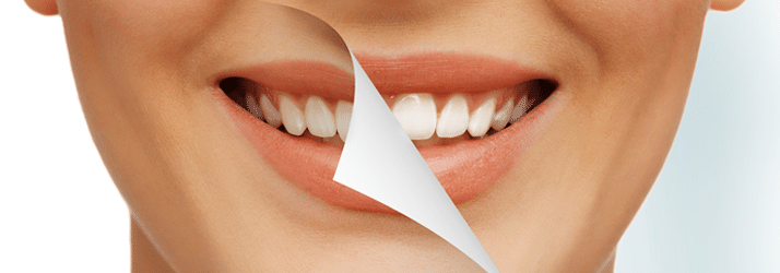Dentist Chandler AZ Cosmetic Dentistry