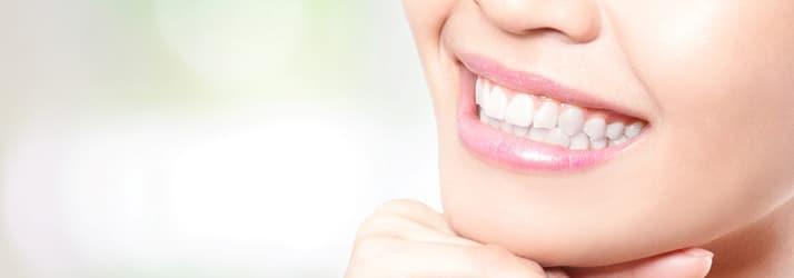 Dentist Chandler AZ Smile Makeover