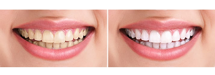 Whitening in Chandler AZ