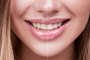 venus-teeth-whitening-768x512
