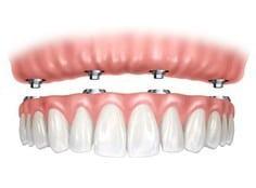 all-on-four-dental-implants-1