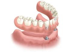implant-overdenture-1