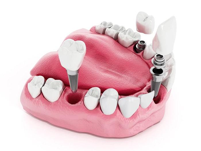 Dentist Chandler AZ Dental Implants