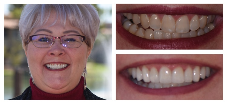 Before and After Dental Care at Mark Arooni DDS