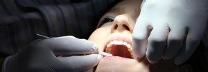 Porcelain Dental Fillings in Chandler AZ