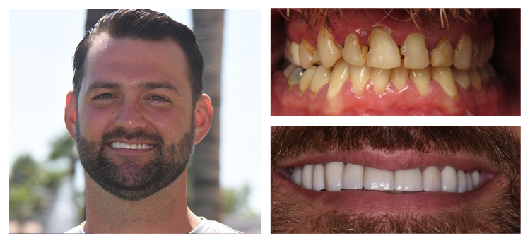 Dentist Chandler AZ Before and After