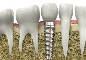 Dentist Chandler AZ Dental Implant